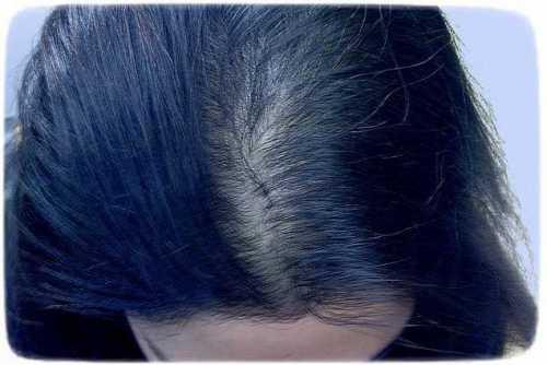 птоз лица: причины ранней деформации контура и появления морщин